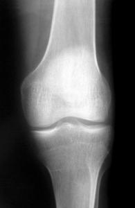 knee-x-ray-1-1562064[1]